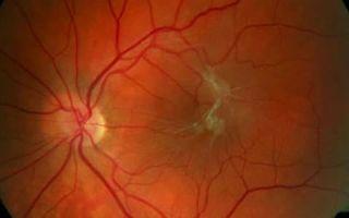 Фиброз сетчатки глаза: что это такое, симптомы и лечение