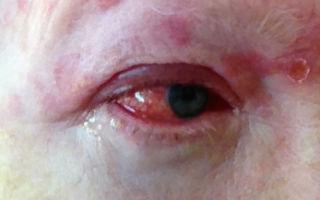 Герпетический конъюнктивит: что делать, если герпес перешел на глаза