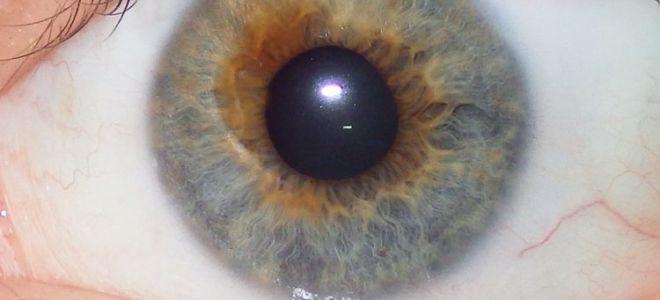 Синдром фукса в офтальмологии: причины, симптомы и лечение