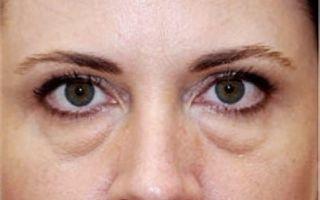 Грыжа нижнего или верхнего глазного века: причины и как убрать