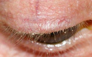 Демодекоз век у человека: что это такое, симптомы и лечение
