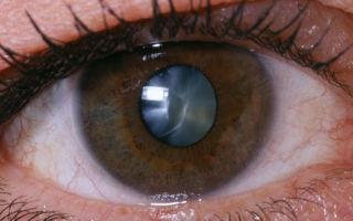 Лечение катаракты без операции – миф или реальность?