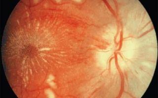 Ангиодистония сетчатки глаза: что это такое, симптомы и лечение