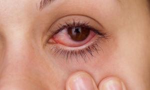 Аденовирусный конъюнктивит: симптомы и лечение у взрослых и детей