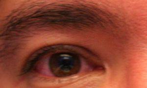 Красные глаза? Что такое гиперемия конъюнктивы