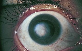 Помутнение роговицы глаза у человека (бельмо, лейкома): причины и лечение