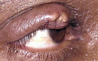 Абсцесс верхнего или нижнего века: лечение гнойника