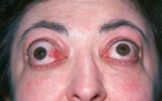 Эндокринная офтальмопатия: что это такое, лечение и рекомендации офтальмологов