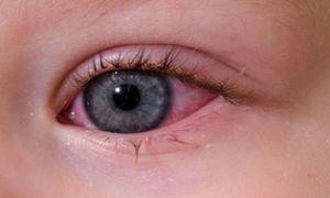 Аллергический конъюнктивит у детей: причины и лечение