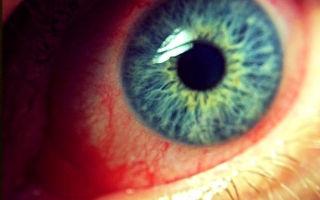 Хронический конъюнктивит: причины, симптомы, как и чем лечить