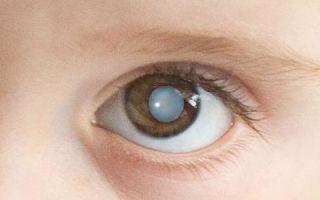 Катаракта у детей: причины, симптомы и лечение
