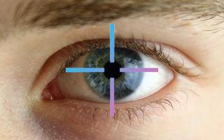 Астигматизм глаз у взрослых: что это такое, симптомы и лечение
