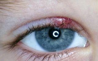 Каким бывает ячмень на глазу – виды и стадии заболевания
