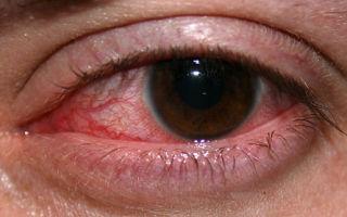 Краевой кератит: виды, лечение и как избежать операции