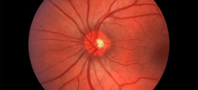 Неврит зрительного (глазного) нерва: симптомы и лечение воспаления