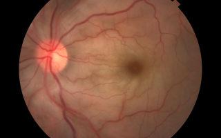Окклюзия центральной артерии сетчатки глаза – лечение