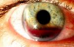 Что такое гифема глаза: причины, симптомы и лечение