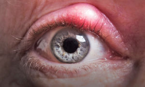 Аллергический блефарит: причины, симптомы и лечение