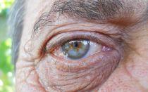 Катаракта в пожилом возрасте: лечение, удаление и последствия