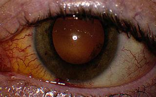 Хориоретинит глаз: симптомы и лечение