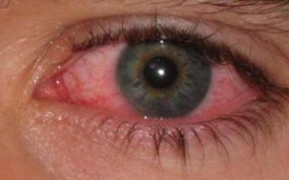 Острый и подострый конъюнктивит: симптомы и чем лечить