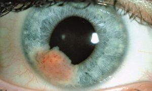Меланома сетчатки глаза: симптомы, причины, лечение и прогноз