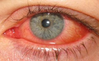 Инфекционный конъюнктивит у взрослых: диагностика и лечение