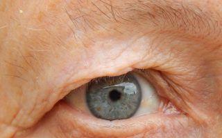 Реабилитация после операции по замене хрусталика глаза при катаракте