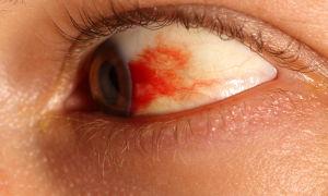 Эффективные глазные капли при кровоизлиянии в глаз