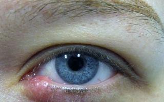 Чем ячмень отличается от халязиона: как определить болезнь