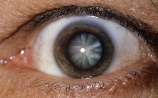 Травматическая и посттравматическая катаракта глаза – лечение