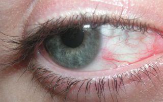 Перенапряжение глаз: симптомы и глазные капли от напряжения и усталости