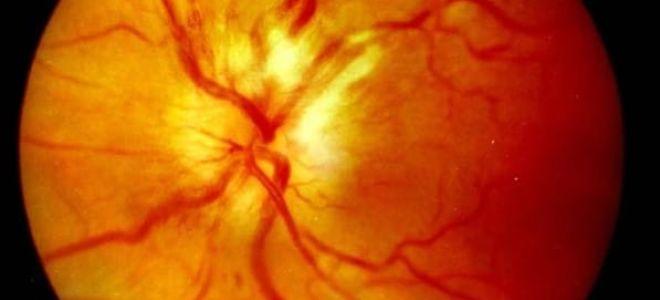 Ретробульбарный неврит зрительного нерва: симптомы и лечение