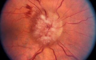 Отек диска зрительного нерва: симптомы, причины и лечение