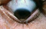 Кератоконус: причины, диагностика, симптомы и лечение