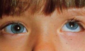 Паралитическое косоглазие у взрослых и детей: причины и лечение