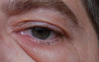 Халязион нижнего века: причины, лечение и операция по удалению