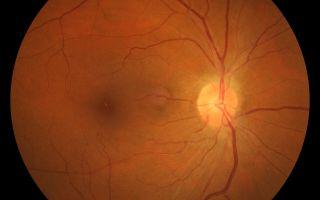 Гипертоническая ретинопатия: симптомы и лечение