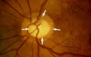 Экскавация диска зрительного нерва: что это такое, виды и особенности