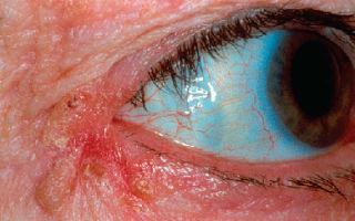 Блефароконъюнктивит глаз: что это такое и как лечить