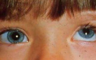 Вертикальный нистагм: причины появления, симптомы и лечение