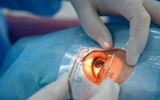 Операция при глаукоме: хирургическое антиглаукоматозное лечение