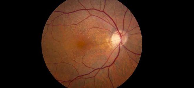Атрофия сетчатки глаза: что это такое, симптомы и лечение