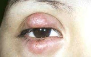 Флегмона глаза: что это за болезнь и как ее лечить, причины и симптомы