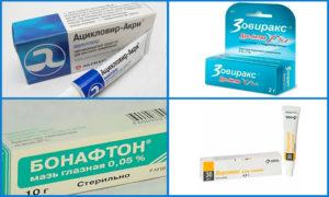 препараты от вирусного конъюнктивита