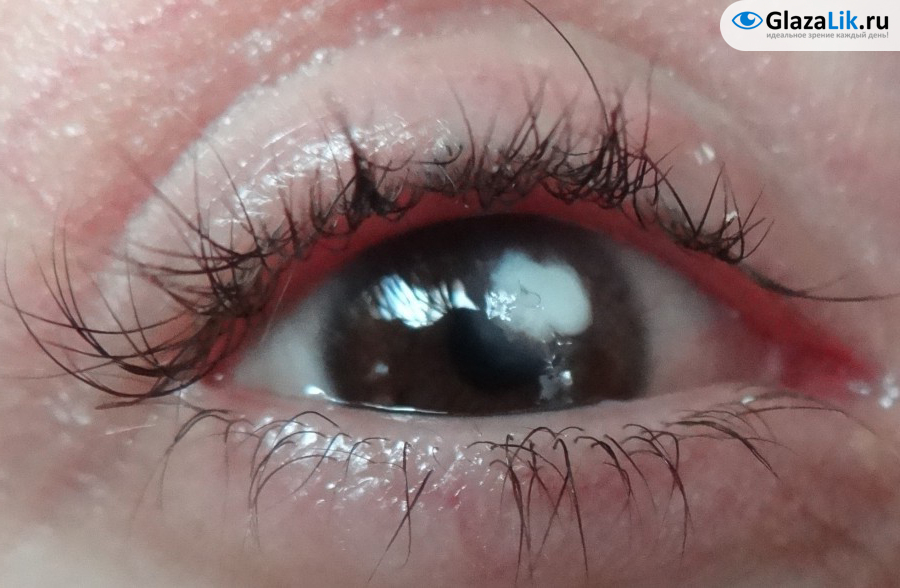 фото бельма на глазу