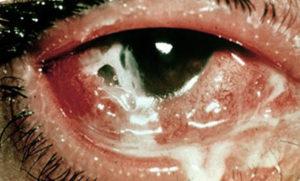фото гонококкового конъюнктивита глаза