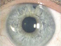 Интраокулярные линзы при афакии глаз