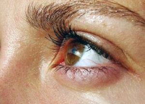 катаральный конъюнктивит глаз