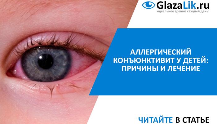 статья аллергический конъюнктивит у детей
